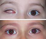 pediatriche04min