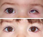 pediatriche22min