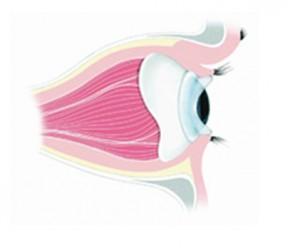 Schema di blefarostato protesico in situ