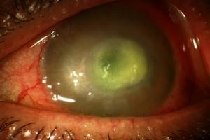 Ascesso corneale
