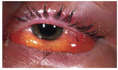 Senza operazione è possibile togliere varicosity