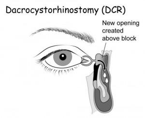 Dacriocistorinostomia