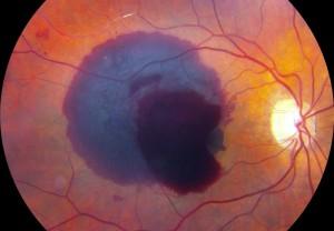 Emorragia retinica
