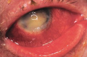 Endophthalmitis-5