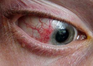 Episcleritiseye