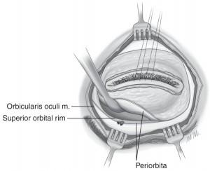 Exenteratio orbitae04
