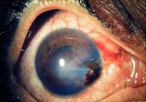 Ferita corneale