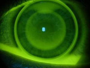 Esame Lente a contatto alla lampada di Wood con Fluoresceina