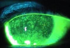Cheratite da occhio secco vista all'esame in Fluoresceina