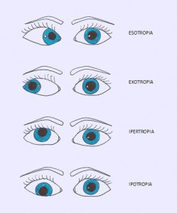 Ipotropia