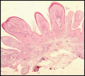 Papilloma2
