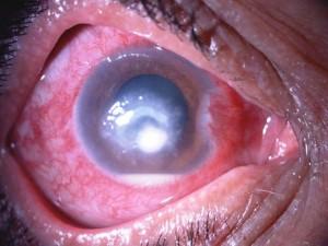 Ulcera batterica