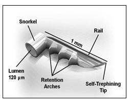 Valvola iStent (dettaglio)