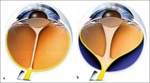 Bulbo normale (a) e con Vitreo primitivo iperplastico (b)