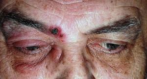 herpes zoster sopraorbitale 1