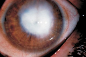 leucoma-corneal