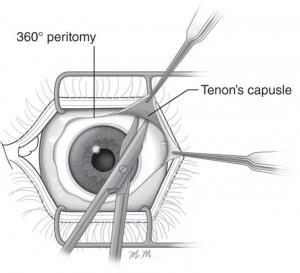 Peritomia capsula di Tenone