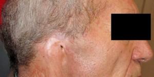 Resazione padiglione auricolare